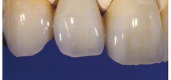 Tạo ra răng giả  bằng công nghệ in 3D