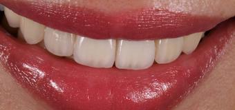 Veneer sứ cao cấp- Kiến tạo  nụ cười đẹp tự nhiên