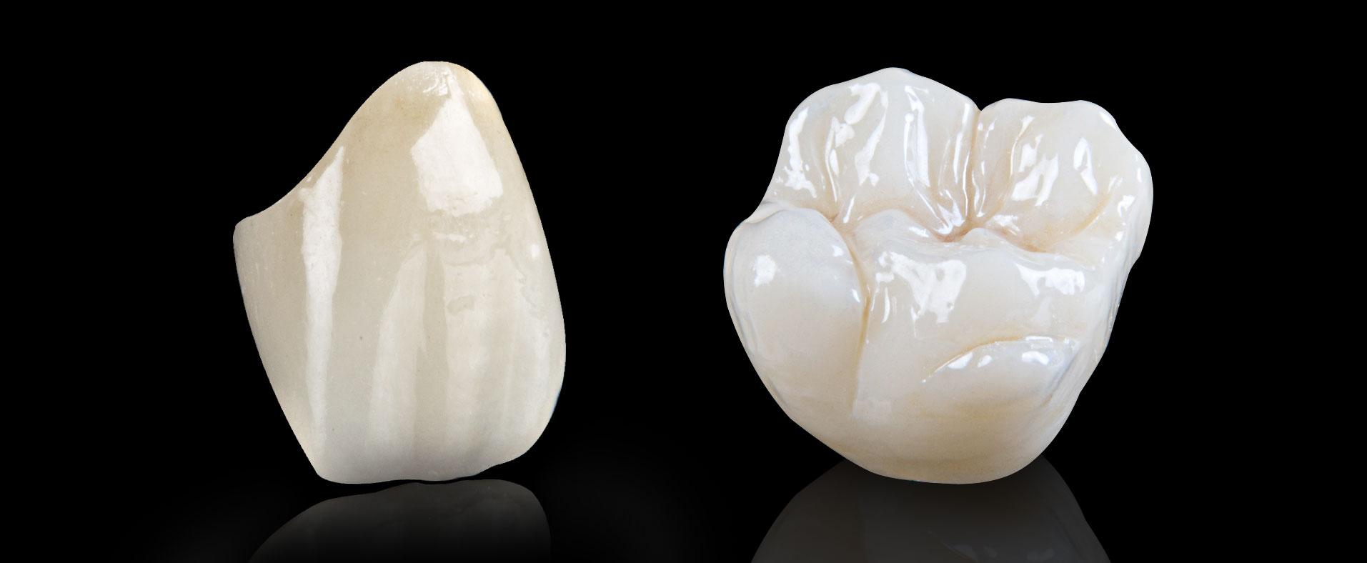 toan-su-implant-artdent-nha-khoa