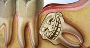 Biến chứng do răng khôn