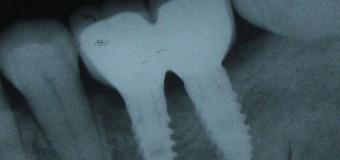 Cấy ghép Implant vùng răng cối lớn ( răng hàm ) hàm dưới