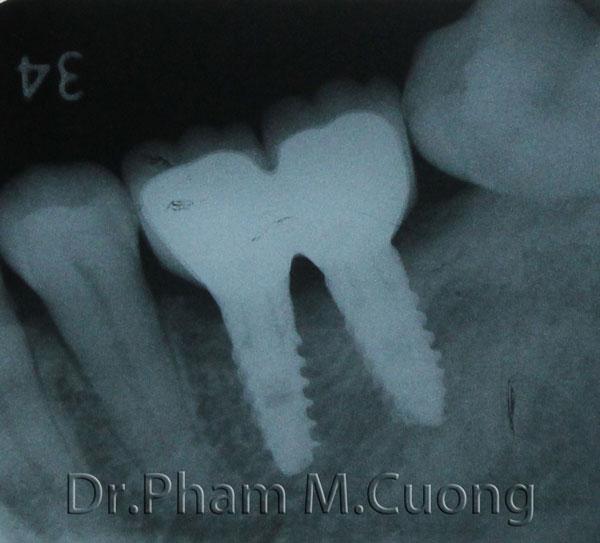 implant-rang-su-chinh-nha-nha-khoa-dental-drcuong-tram-rang-nho-rang-4