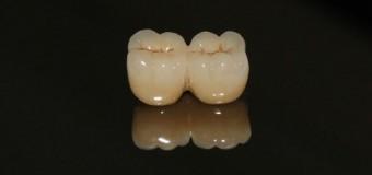 Cầu răng sứ phục hình lại răng bị mất