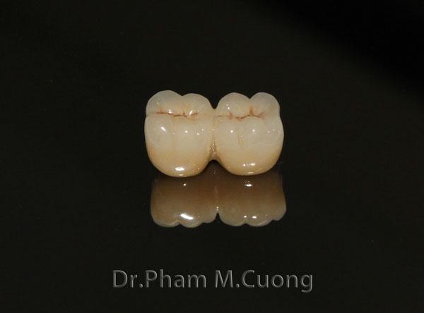implant-rang-su-chinh-nha-nha-khoa-dental-drcuong-tram-rang-nho-rang-5