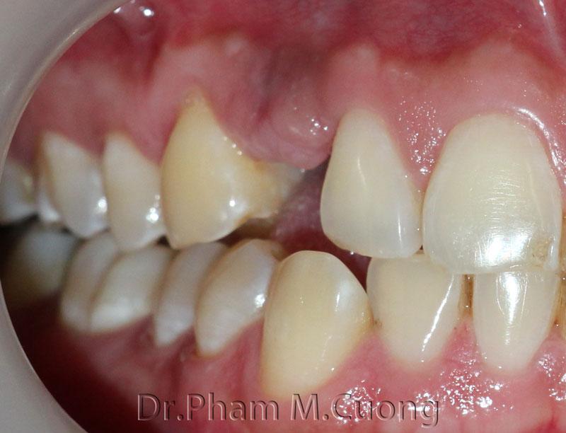 implant-rang-su-chinh-nha-nha-khoa-dental-drcuong-tram-rang-nho-rang-khong-dau-11