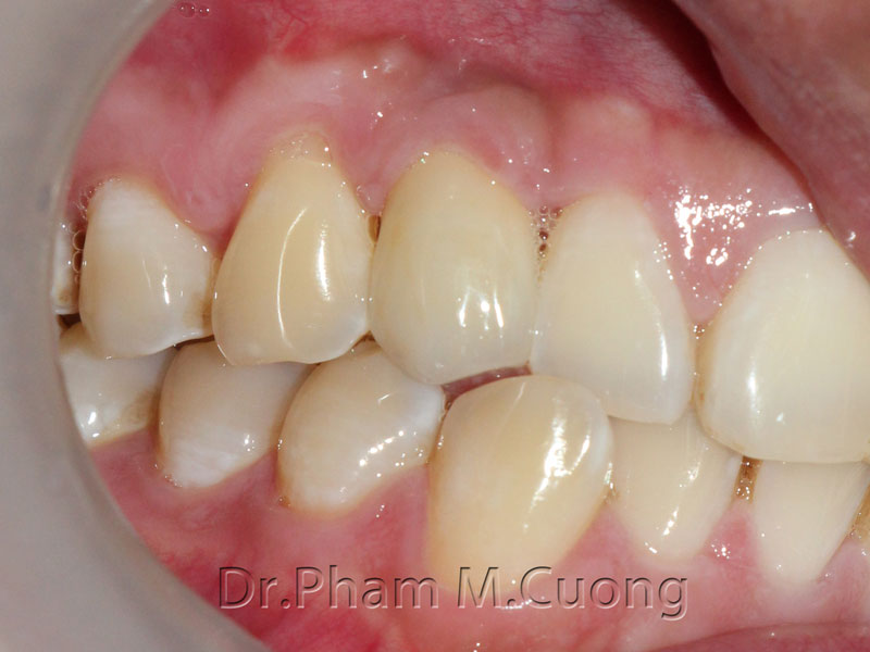 implant-rang-su-chinh-nha-nha-khoa-dental-drcuong-tram-rang-nho-rang-khong-dau-13