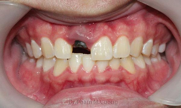 implant-rang-su-chinh-nha-nha-khoa-dental-drcuong-tram-rang-nho-rang-khong-dau-1