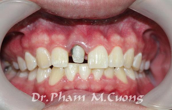 implant-rang-su-chinh-nha-nha-khoa-dental-drcuong-tram-rang-nho-rang-khong-dau-3