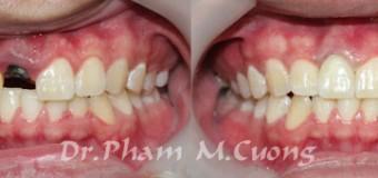 Răng toàn sứ phục hồi lại răng bị gẫy-R11