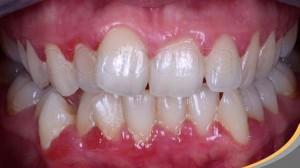 implant-rang-su-chinh-nha-nha-khoa-dental-drcuong-tram-rang-nho-rang-khong-dau-47