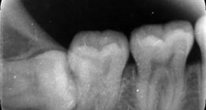 Những lưu ý sau khi nhổ răng khôn .