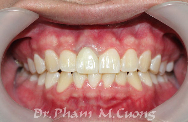 implant-rang-su-chinh-nha-nha-khoa-dental-drcuong-tram-rang-nho-rang-khong-dau-5