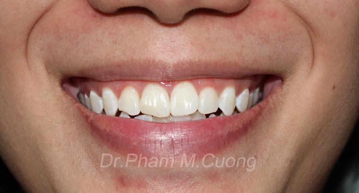 implant-rang-su-chinh-nha-nha-khoa-dental-drcuong-tram-rang-nho-rang-khong-dau-50