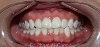 Trám  thẩm mỹ răng của bị mẻ