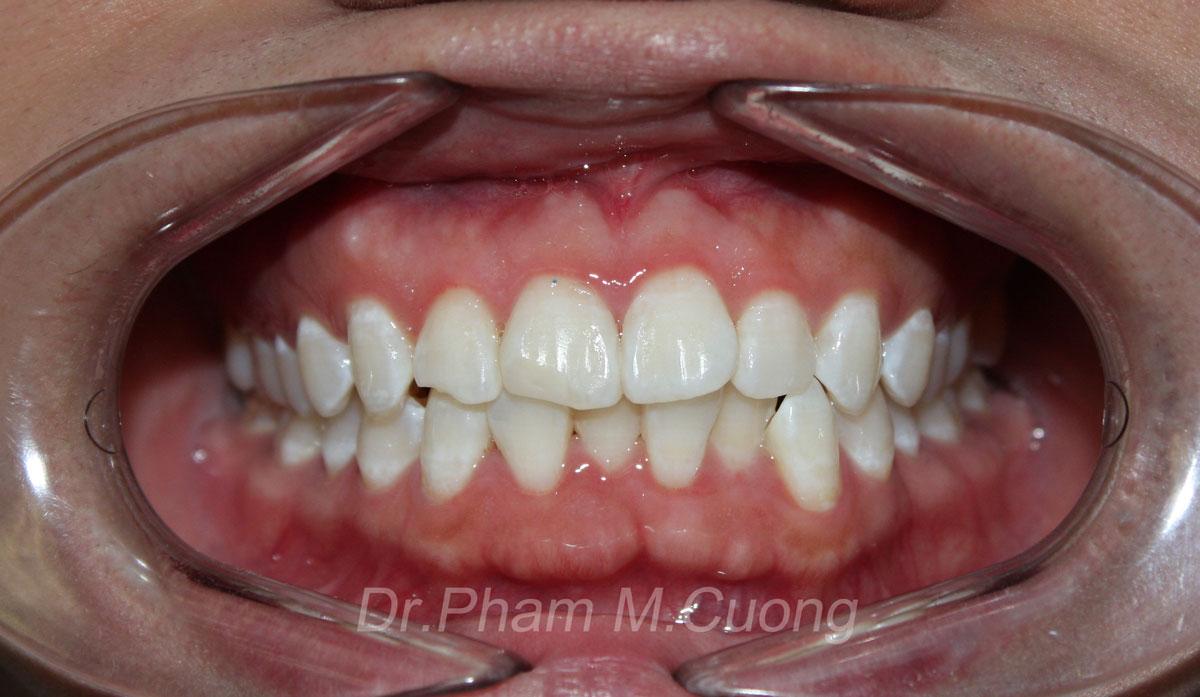 implant-rang-su-chinh-nha-nha-khoa-dental-drcuong-tram-rang-nho-rang-khong-dau-51