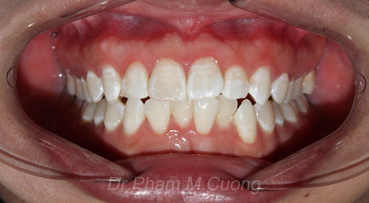 implant-rang-su-chinh-nha-nha-khoa-dental-drcuong-tram-rang-nho-rang-khong-dau-52