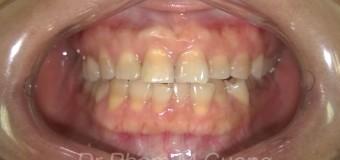 Trám  thẩm mỹ răng cửa R12