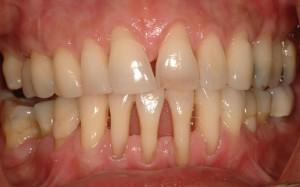 implant-rang-su-chinh-nha-nha-khoa-dental-drcuong-tram-rang-nho-rang-khong-dau-91