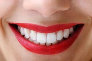 implant-rang-su-chinh-nha-nha-khoa-dental-drcuong-tram-rang-nho-rang-khong-dau-93