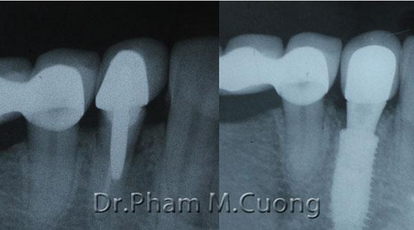 implant-rang-su-chinh-nha-nha-khoa-dental-drcuong-8