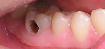 Sâu răng là gì ? Điều trị như thế nào ?