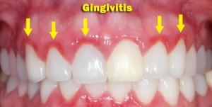 gingivitis_