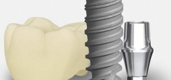 Cấy ghép Implant nha khoa- Phương pháp điều trị an toàn và tiên tiến nhất cho người mất răng.
