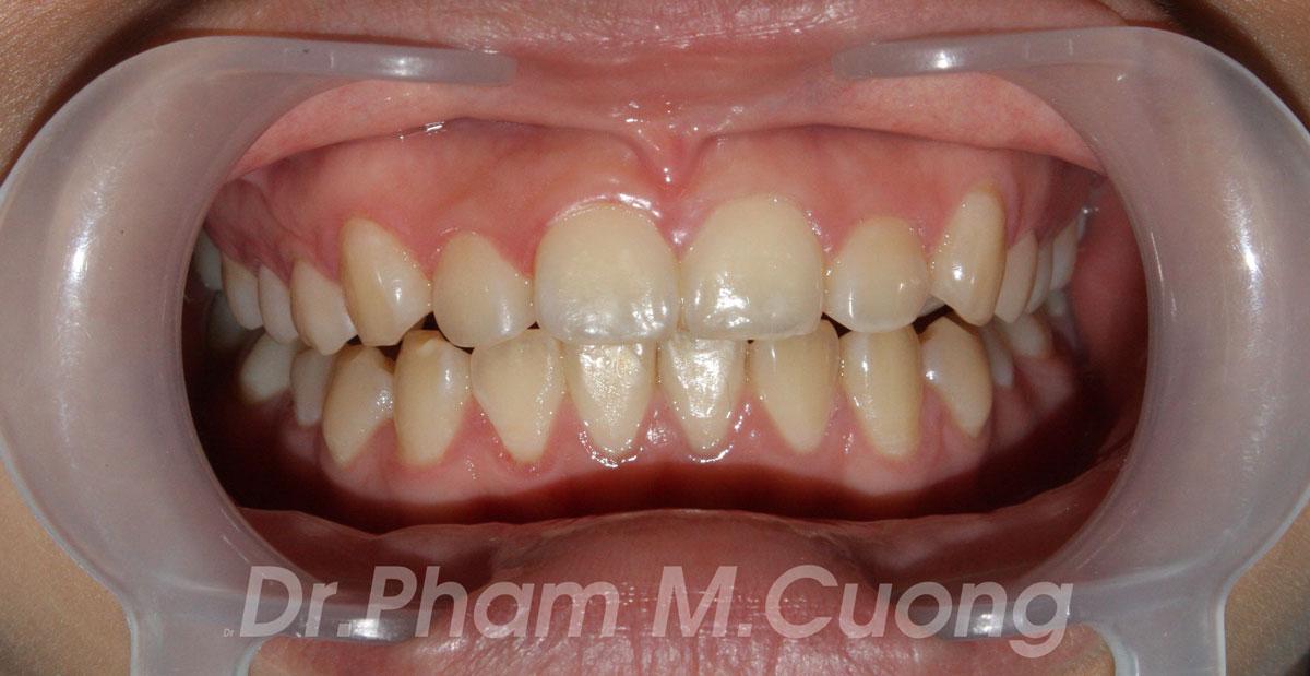 implant-rang-su-chinh-nha-nha-khoa-dental-drcuong-tram-rang-nho-rang-khong-dau-100