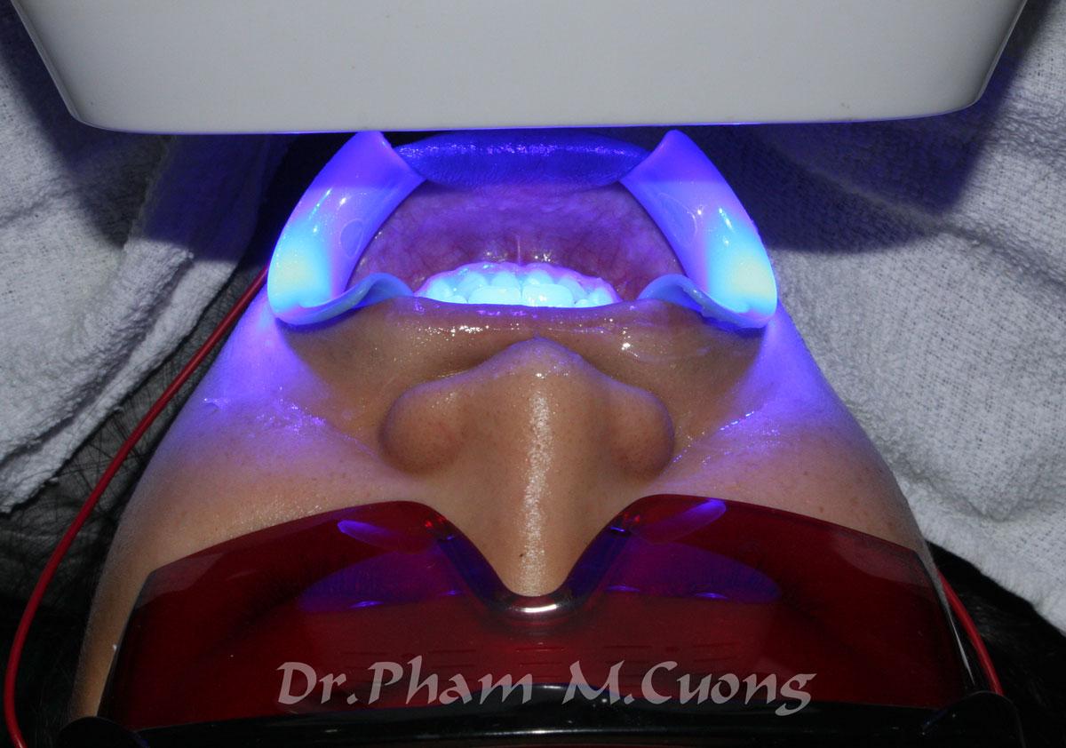 implant-rang-su-chinh-nha-nha-khoa-dental-drcuong-tram-rang-nho-rang-khong-dau-101
