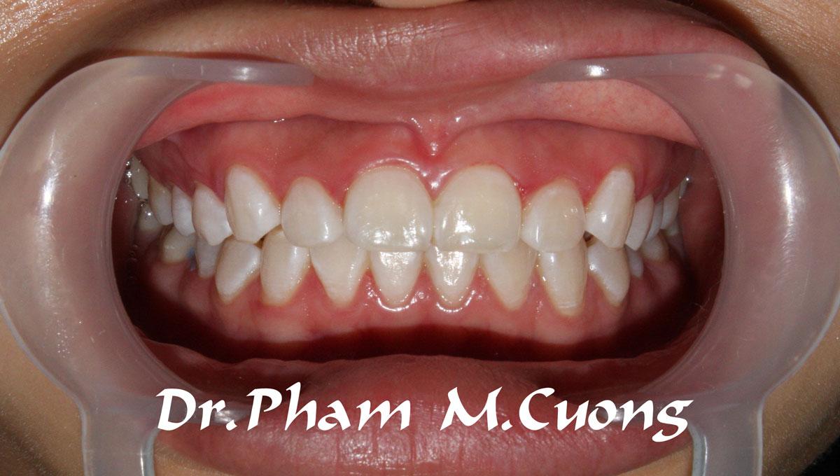 implant-rang-su-chinh-nha-nha-khoa-dental-drcuong-tram-rang-nho-rang-khong-dau-102