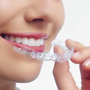 implant-rang-su-chinh-nha-nha-khoa-dental-drcuong-tram-rang-nho-rang-khong-dau-35