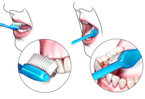 implant-rang-su-chinh-nha-nha-khoa-dental-drcuong-tram-rang-nho-rang-khong-dau-a2
