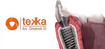 Cấy ghép Implant ở vùng răng thẩm mỹ ( răng cửa ) và phục hình toàn sứ