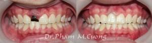 implant-rang-su-chinh-nha-nha-khoa-dental-drcuong-tram-rang-nho-rang-khong-dau-4