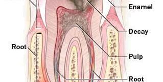 Tại sao phải lấy tủy răng ( nội nha ) ?