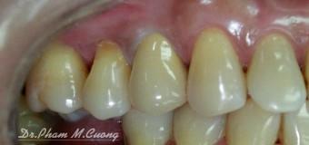 Răng sứ thẩm mỹ vùng răng cối nhỏ-Ziconia ( Ivoclar vivadent )