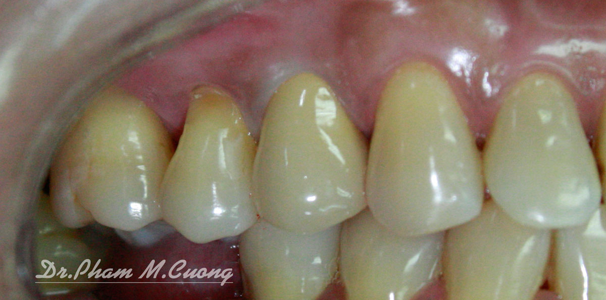 dr.pham-m.cuong-nha-khoa-dental-implant-01