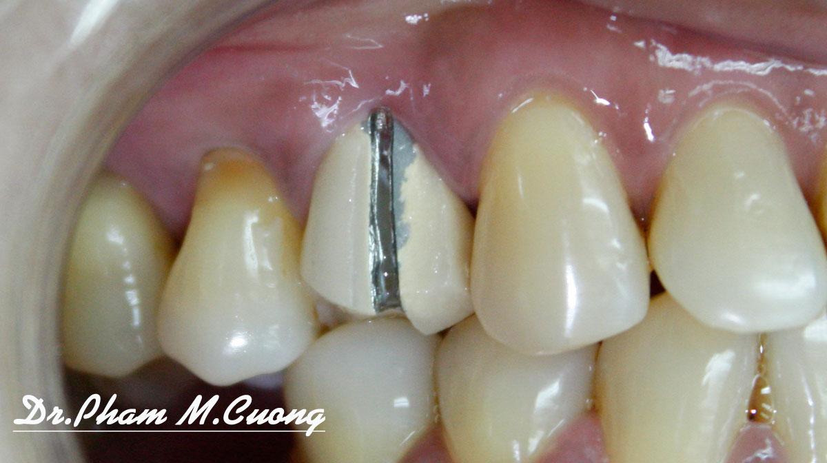 dr.pham-m.cuong-nha-khoa-dental-implant