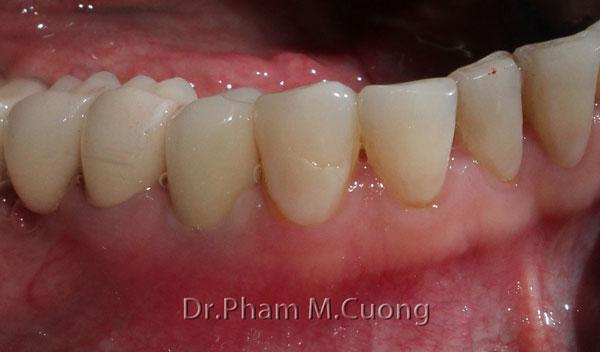 implant-rang-su-chinh-nha-nha-khoa-dental-drcuong-3