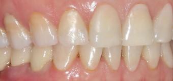 Cấy ghép implant Tekka-Pháp,cho  kết quả thẩm mỹ tối ưu .