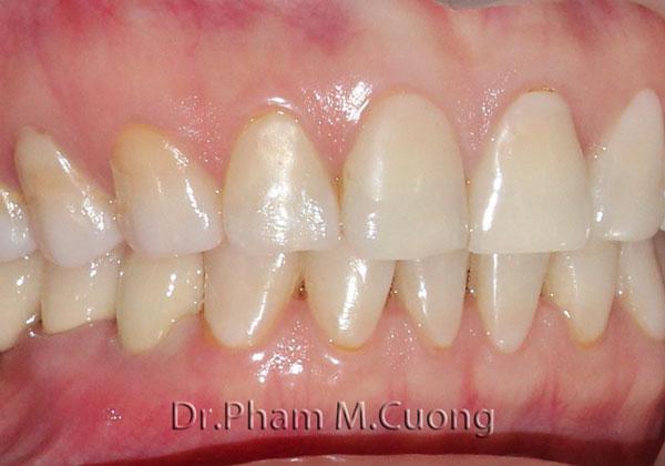 implant-rang-su-chinh-nha-nha-khoa-dental-drcuong-4