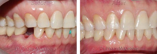 implant-rang-su-chinh-nha-nha-khoa-dental-drcuong-tram-rang-nho-rang-2