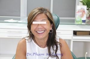 implant-rang-su-chinh-nha-nha-khoa-dental-drcuong-tram-rang-nho-rang-khong-dau-46
