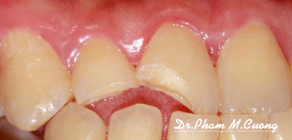 implant-chinh-nha-nieng-rang-rang-su-tham-my-nha-khoa-dental-dr-pham-m-cuong02