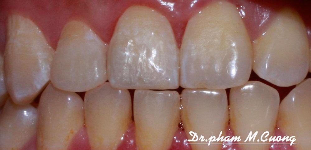 implant-chinh-nha-nieng-rang-rang-su-tham-my-nha-khoa-dental-dr-pham-m-cuong03