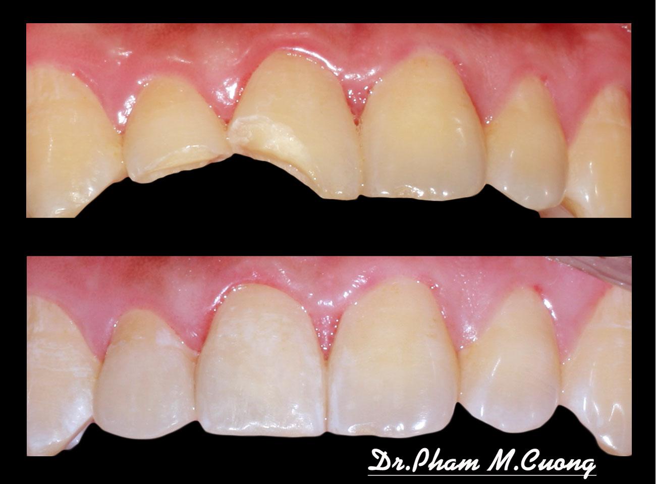 implant-chinh-nha-nieng-rang-rang-su-tham-my-nha-khoa-dental-dr-pham-m.cuong