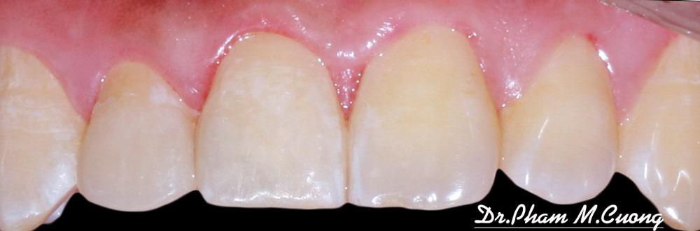 implant-chinh-nha-nieng-rang-rang-su-tham-my-nha-khoa-dental