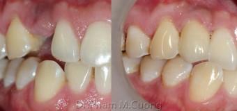 Cấy ghép Implant ở vùng răng thẩm mỹ ( răng nanh-R13 )