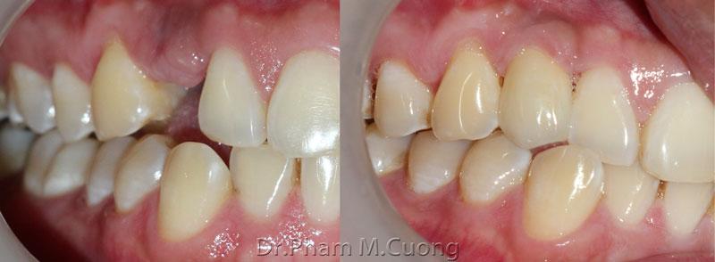implant-rang-su-chinh-nha-nha-khoa-dental-drcuong-tram-rang-nho-rang-khong-dau-10