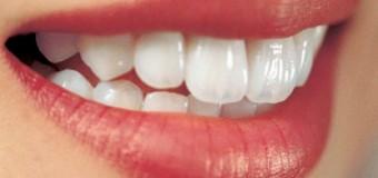 Nguyên nhân chính dẫn đến việc mất răng.